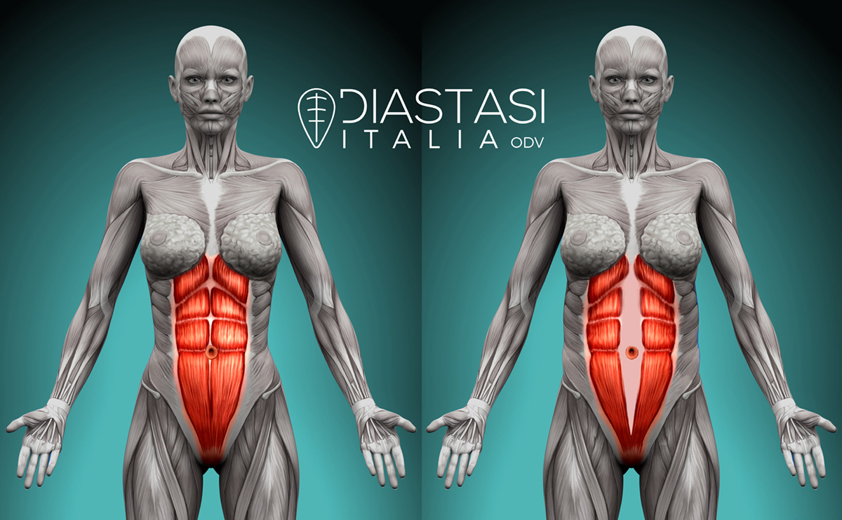 Diastasi addominale: cos'è, cause, sintomi e rimedi